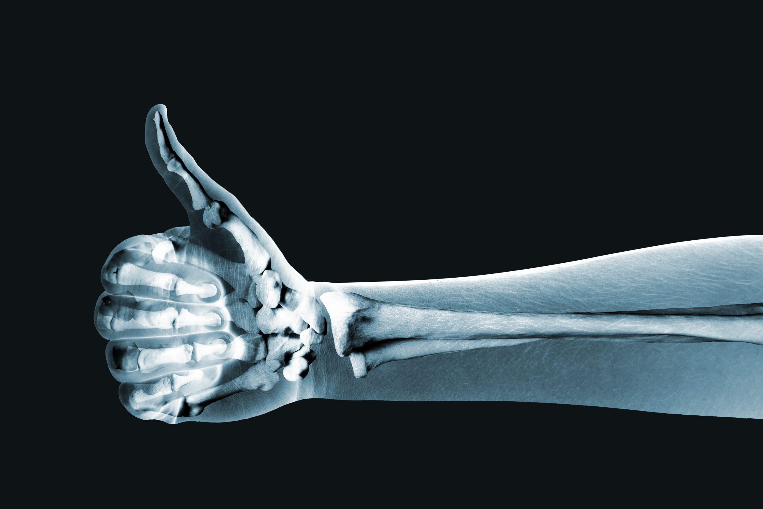 radiologie et covid-19